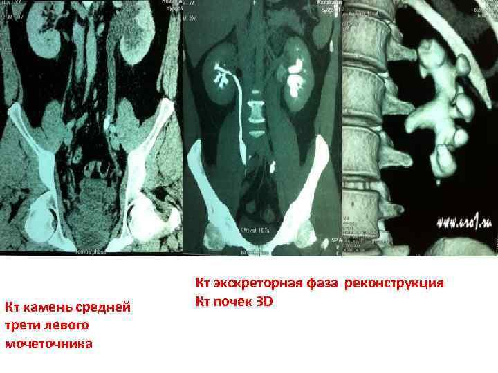 Кт камень средней трети левого мочеточника Кт экскреторная фаза реконструкция Кт почек 3 D