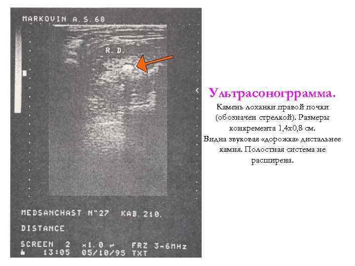 Ультрасоногррамма. Камень лоханки правой почки (обозначен стрелкой). Размеры конкремента 1, 4 x 0, 8