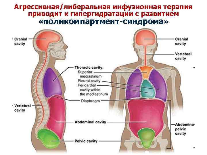 Агрессивная/либеральная инфузионная терапия приводит к гипергидратации с развитием «поликомпартмент-синдрома»