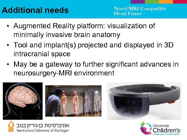 Additional needs Novel MRI Compatible Head Frame • Augmented Reality platform: visualization of minimally