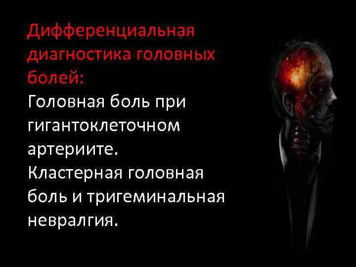 Дифференциальная диагностика головных болей: Головная боль при гигантоклеточном артериите. Кластерная головная боль и тригеминальная