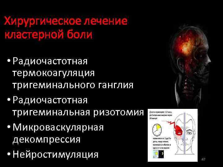 Хирургическое лечение кластерной боли • Радиочастотная термокоагуляция тригеминального ганглия • Радиочастотная тригеминальная ризотомия •