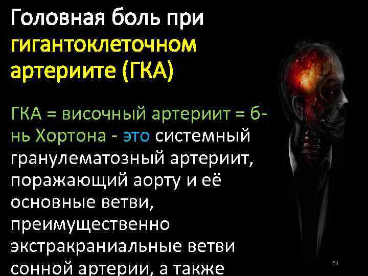 Головная боль при гигантоклеточном артериите (ГКА) ГКА = височный артериит = бнь Хортона -