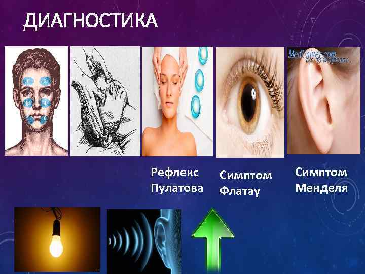 ДИАГНОСТИКА Рефлекс Пулатова Симптом Флатау Симптом Менделя