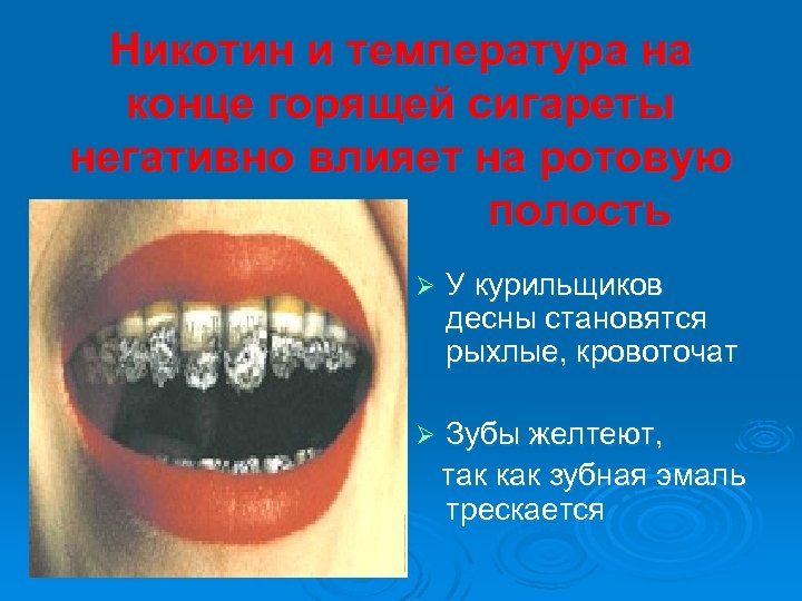 Никотин и температура на конце горящей сигареты негативно влияет на ротовую полость Ø У