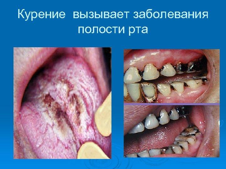 Курение вызывает заболевания полости рта