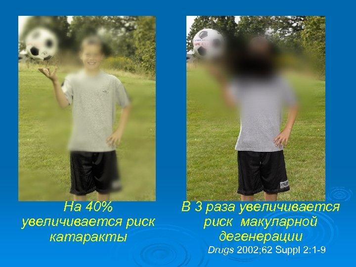 На 40% увеличивается риск катаракты В 3 раза увеличивается риск макуларной дегенерации Drugs 2002;