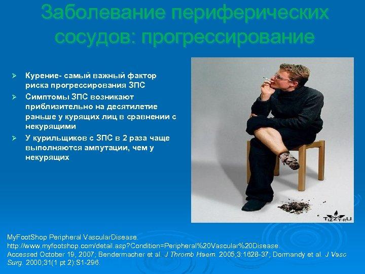 Заболевание периферических сосудов: прогрессирование Курение- самый важный фактор риска прогрессирования ЗПС Ø Симптомы ЗПС