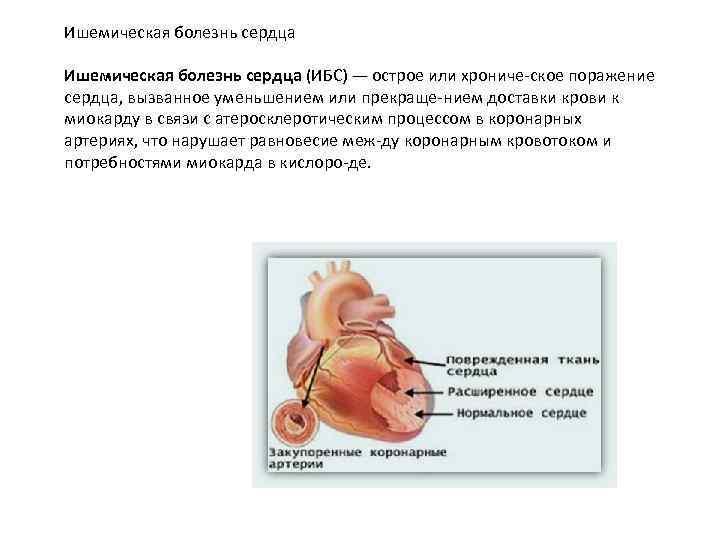Ишемическая болезнь сердца (ИБС) — острое или хрониче ское поражение сердца, вызванное уменьшением или