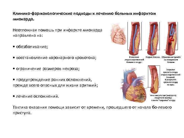Клинико-фармакологические подходы к лечению больных инфарктом миокарда. Неотложная помошь при инфаркте миокарда направлена на: