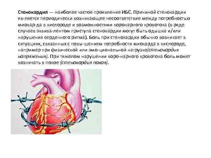 Стенокардия — наиболее частое проявление ИБС. Причиной стенокардии яв ляется периодически возникающее несоответствие между