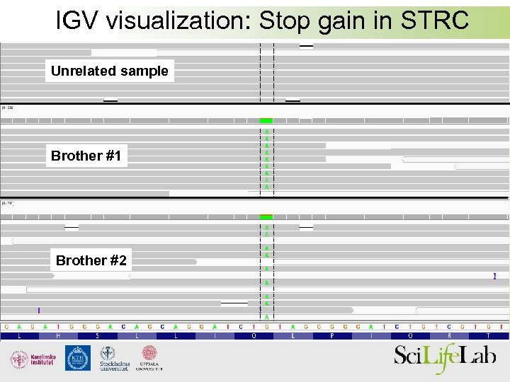 IGV visualization: Stop gain in STRC Unrelated sample Brother #1 Brother #2