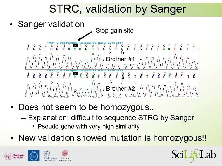 STRC, validation by Sanger • Sanger validation Stop-gain site Brother #1 Brother #2 •