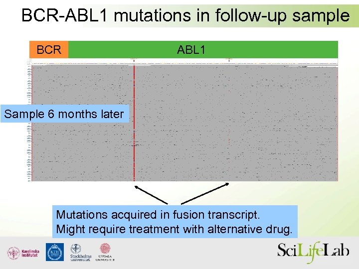 BCR-ABL 1 mutations in follow-up sample BCR ABL 1 Sample 6 months later Mutations