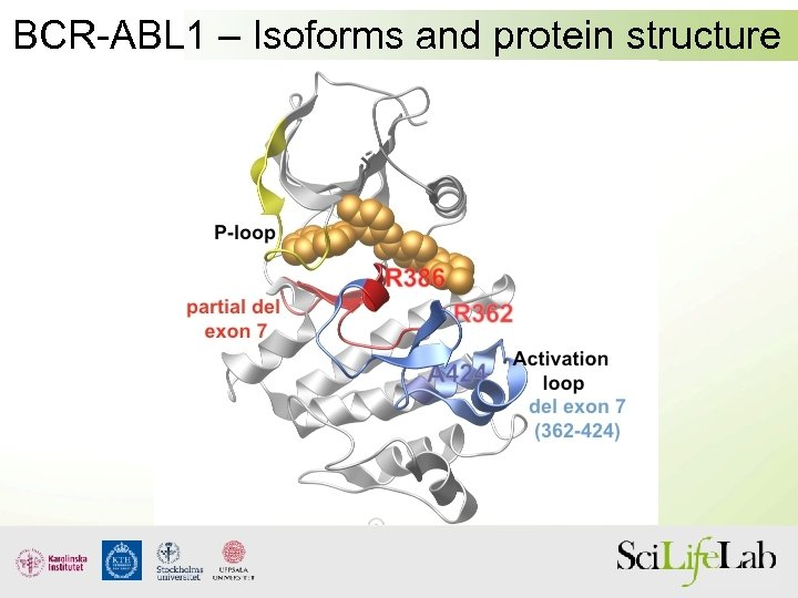 BCR-ABL 1 – Isoforms and protein structure