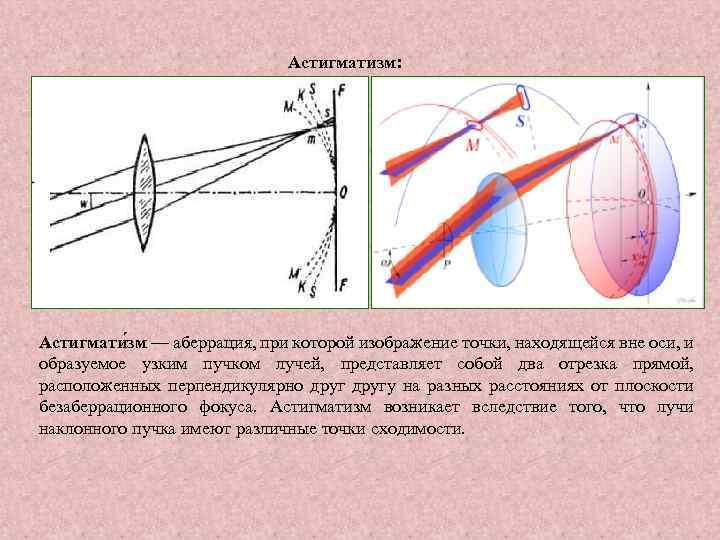 Астигматизм: Астигмати зм — аберрация, при которой изображение точки, находящейся вне оси, и образуемое