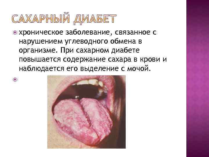 хроническое заболевание, связанное с нарушением углеводного обмена в организме. При сахарном диабете повышается