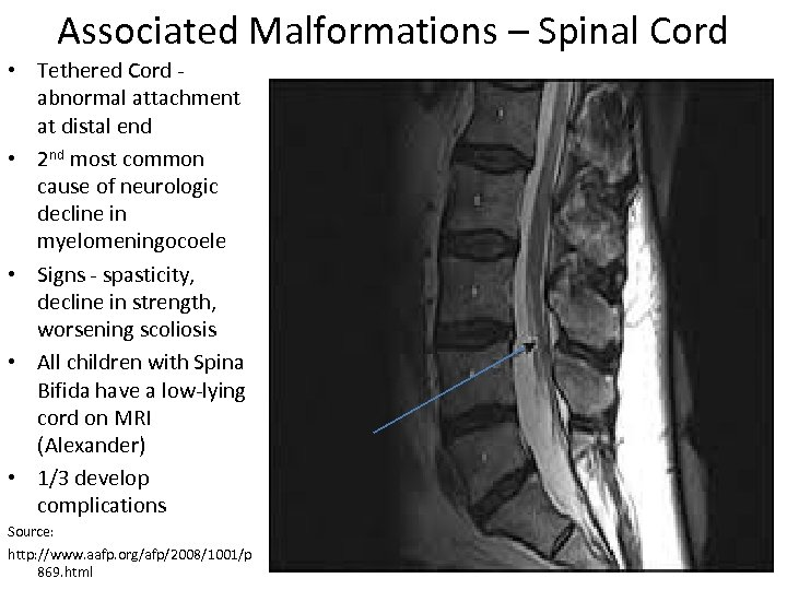 Associated Malformations – Spinal Cord • Tethered Cord - abnormal attachment at distal end