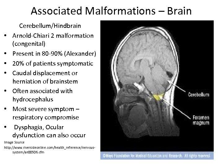 Associated Malformations – Brain • • Cerebellum/Hindbrain Arnold-Chiari 2 malformation (congenital) Present in 80