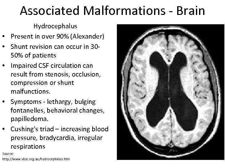 Associated Malformations - Brain • • • Hydrocephalus Present in over 90% (Alexander) Shunt