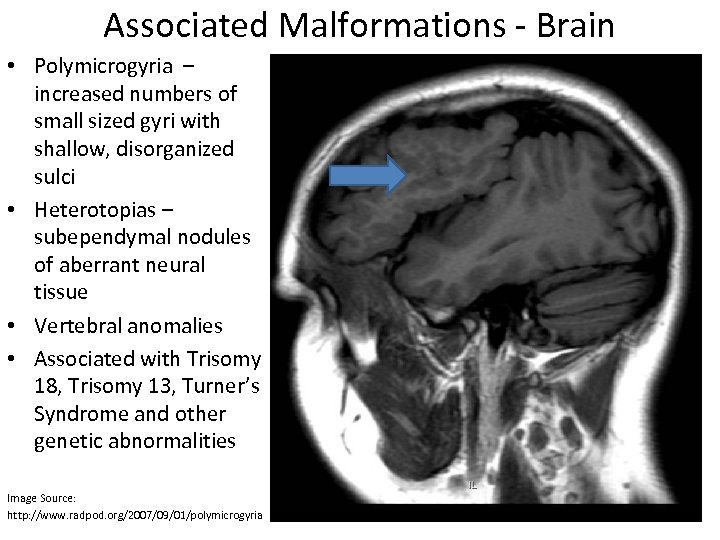 Associated Malformations - Brain • Polymicrogyria – increased numbers of small sized gyri with