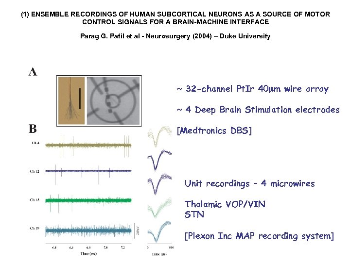 (1) ENSEMBLE RECORDINGS OF HUMAN SUBCORTICAL NEURONS AS A SOURCE OF MOTOR CONTROL SIGNALS