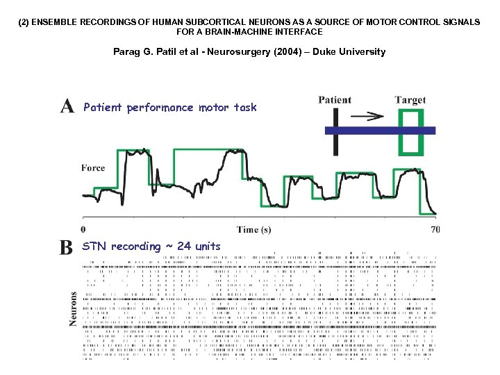 (2) ENSEMBLE RECORDINGS OF HUMAN SUBCORTICAL NEURONS AS A SOURCE OF MOTOR CONTROL SIGNALS