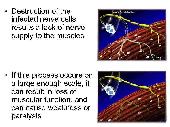 • Destruction of the infected nerve cells results a lack of nerve supply