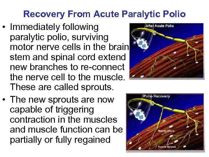 Recovery From Acute Paralytic Polio • Immediately following paralytic polio, surviving motor nerve cells