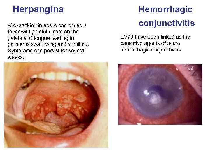 Herpangina • Coxsackie viruses A can cause a fever with painful ulcers on the