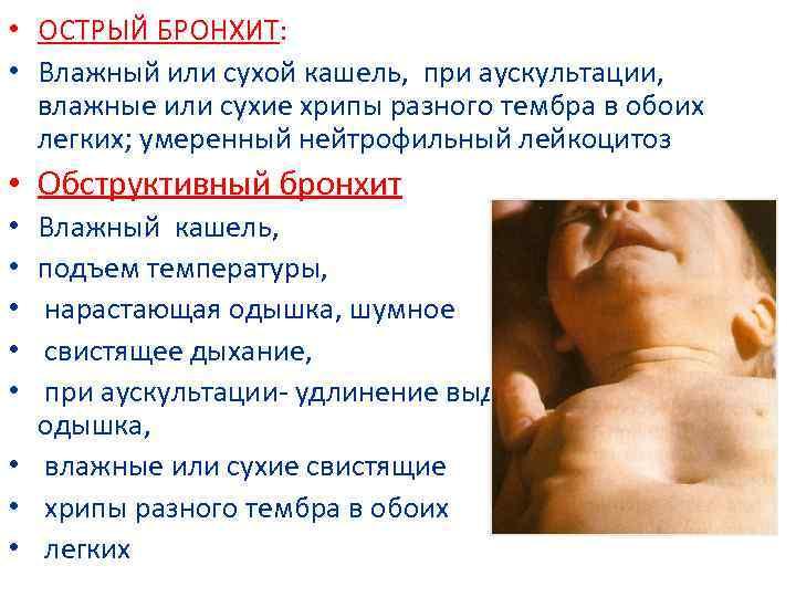 Бронхит острый у беременной как лечить 84
