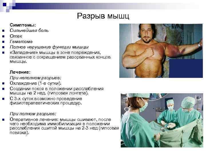 Разрыв мышц n n n n n Симптомы: Сильнейшая боль Отек Гематома Полное нарушение