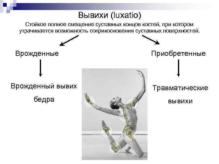 Вывихи (luxatio) Стойкое полное смещение суставных концов костей, при котором утрачивается возможность соприкосновения суставных