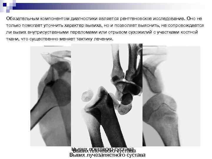 Обязательным компонентом диагностики является рентгеновское исследование. Оно не только помогает уточнить характер вывиха, но