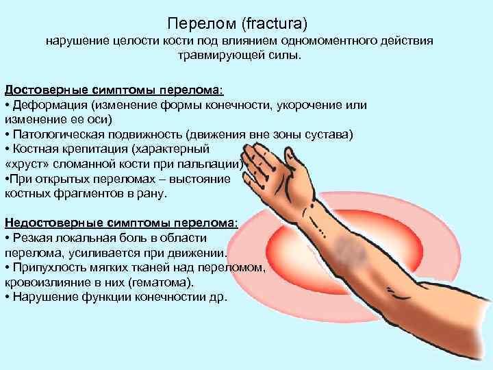 Перелом (fractura) нарушение целости кости под влиянием одномоментного действия травмирующей силы. Достоверные симптомы перелома: