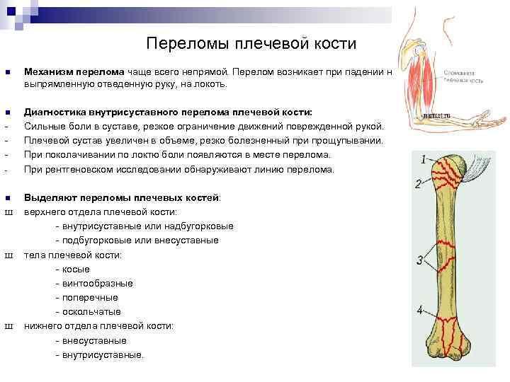 Переломы плечевой кости n Механизм перелома чаще всего непрямой. Перелом возникает при падении на