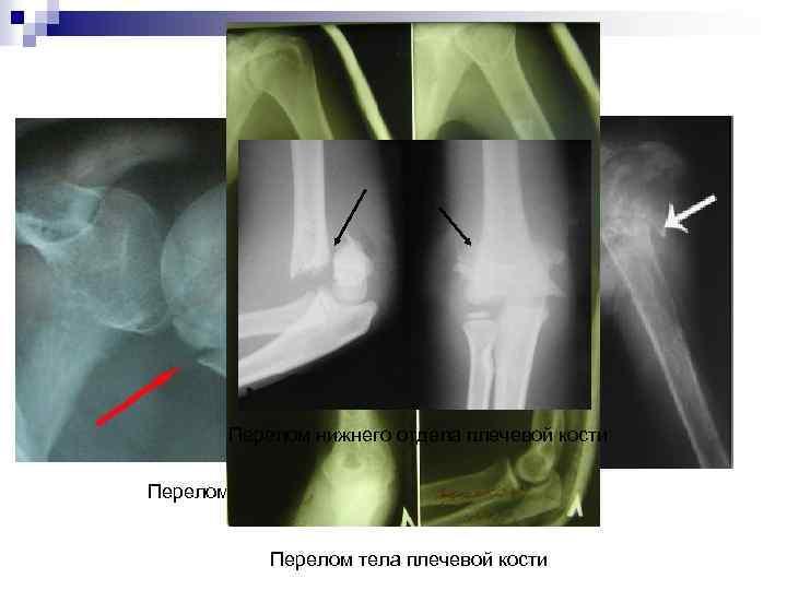 Перелом нижнего отдела плечевой кости Перелом верхнего отдела плечевой кости Перелом тела плечевой кости