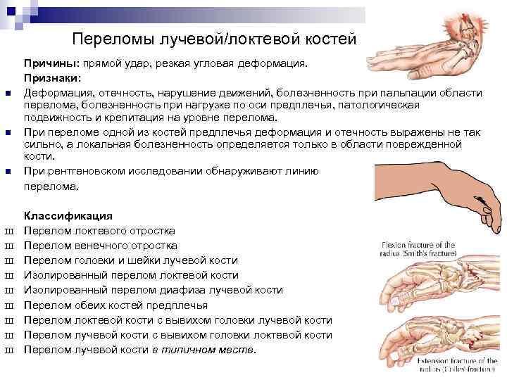 Переломы лучевой/локтевой костей n n n Ш Ш Ш Ш Ш Причины: прямой удар,