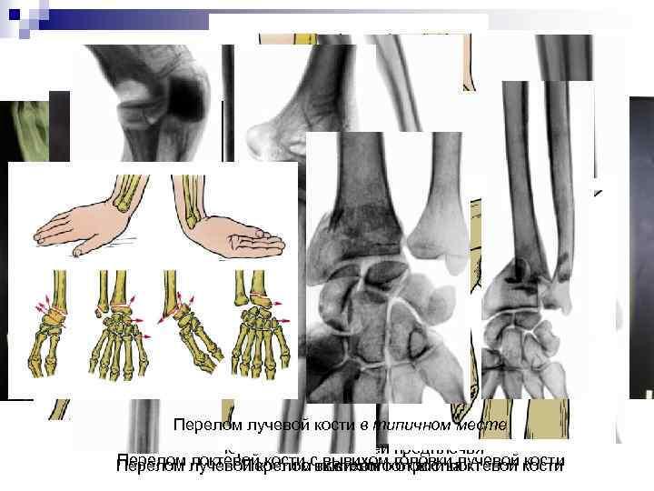 Перелом лучевой перелом локтевой месте Изолированный кости в типичном кости Изолированный перелом диафиза лучевой