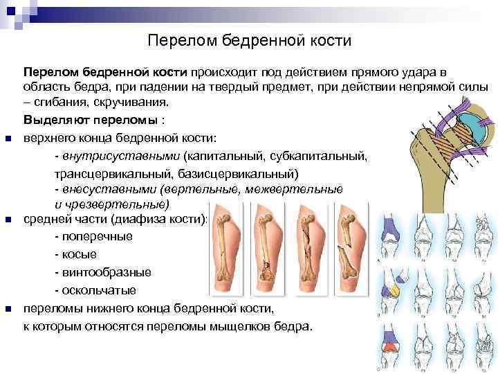 Перелом бедренной кости n n n Перелом бедренной кости происходит под действием прямого удара