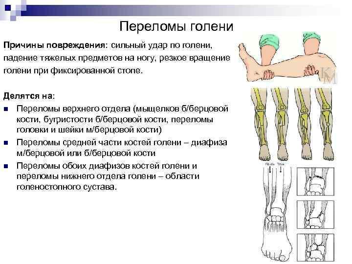 Переломы голени Причины повреждения: сильный удар по голени, падение тяжелых предметов на ногу, резкое