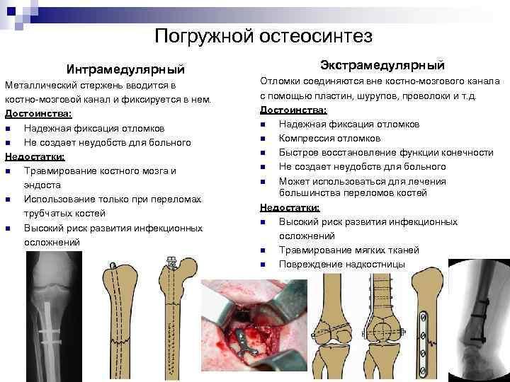 Погружной остеосинтез Интрамедулярный Металлический стержень вводится в костно-мозговой канал и фиксируется в нем. Достоинства: