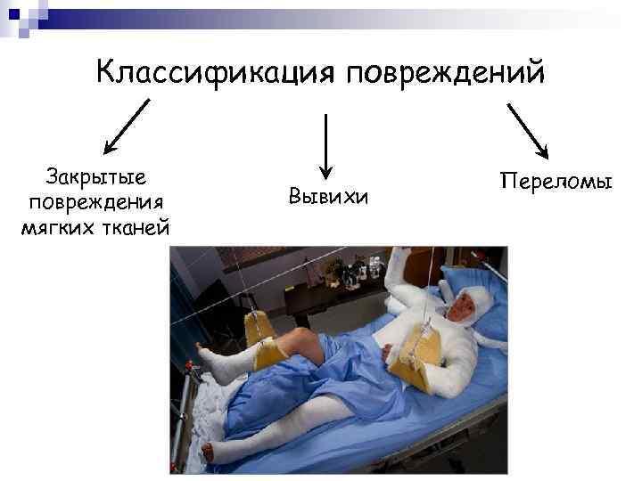 Классификация повреждений Закрытые повреждения мягких тканей Вывихи Переломы