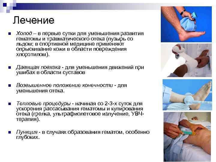 Лечение n Холод – в первые сутки для уменьшения развития гематомы и травматического отека