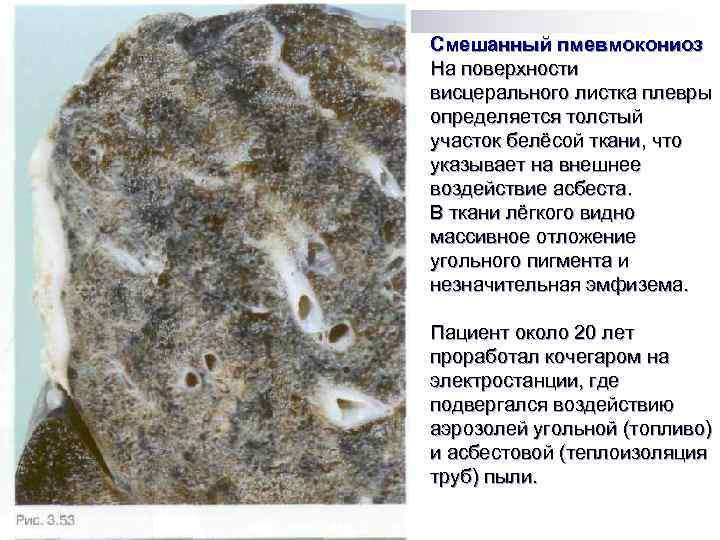 Смешанный пмевмокониоз На поверхности висцерального листка плевры определяется толстый участок белёсой ткани, что указывает