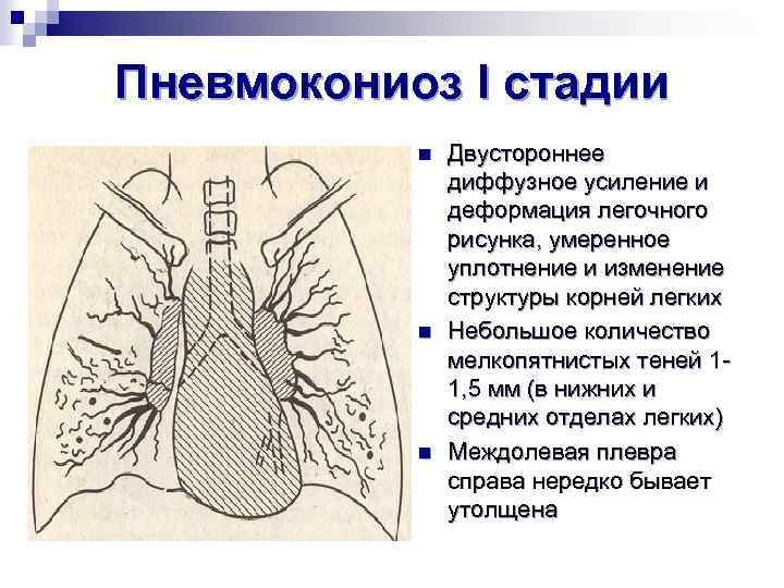 Пневмокониоз I стадии n n n Двустороннее диффузное усиление и деформация легочного рисунка, умеренное
