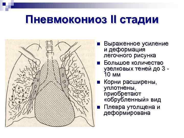 Пневмокониоз II стадии n n Выраженное усиление и деформация легочного рисунка Большое количество узелковых