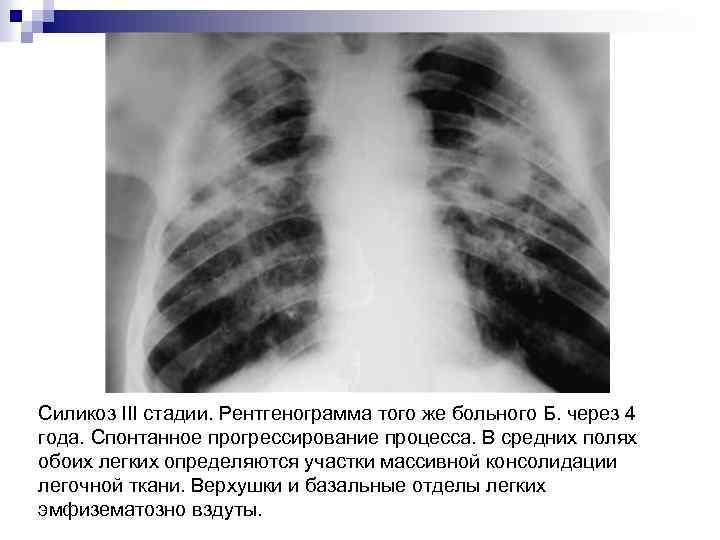 Силикоз III стадии. Рентгенограмма того же больного Б. через 4 года. Спонтанное прогрессирование процесса.