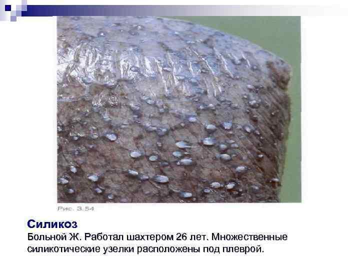 Силикоз Больной Ж. Работал шахтером 26 лет. Множественные силикотические узелки расположены под плеврой.