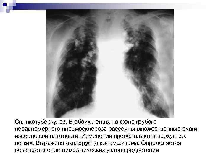 Силикотуберкулез. В обоих легких на фоне грубого неравномерного пневмосклероза рассеяны множественные очаги известковой плотности.